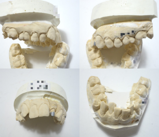 歯型歯並び